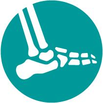 Traumatología de tobillo y pie